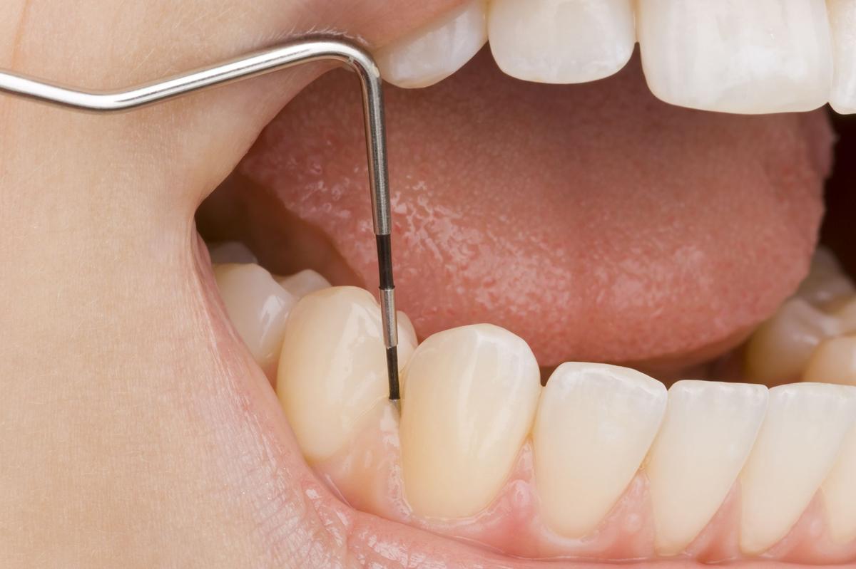 periodoncia-1