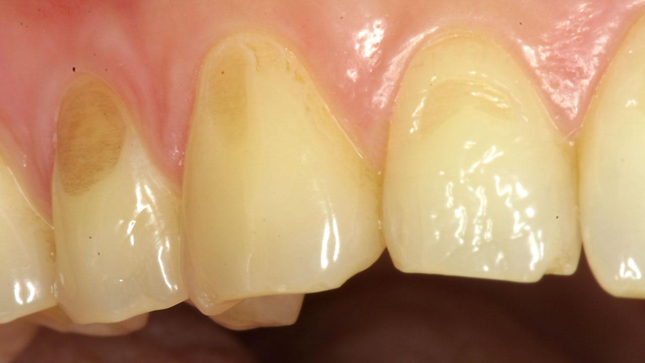 Erosión dental: ojo a lo que come y a la forma como lo hace