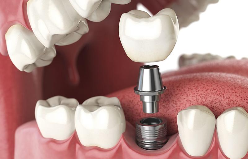 Implantes dentales: todo lo que debemos saber